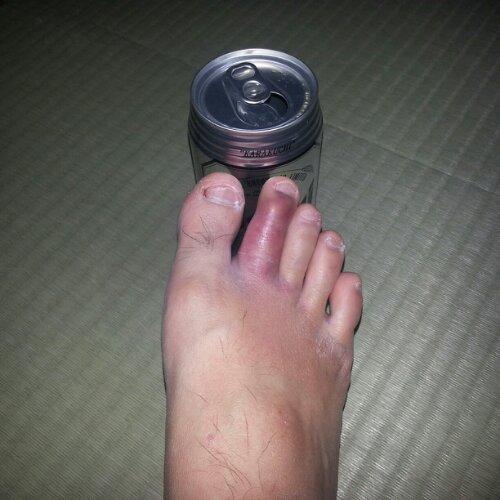 いてて 足指靭帯損傷